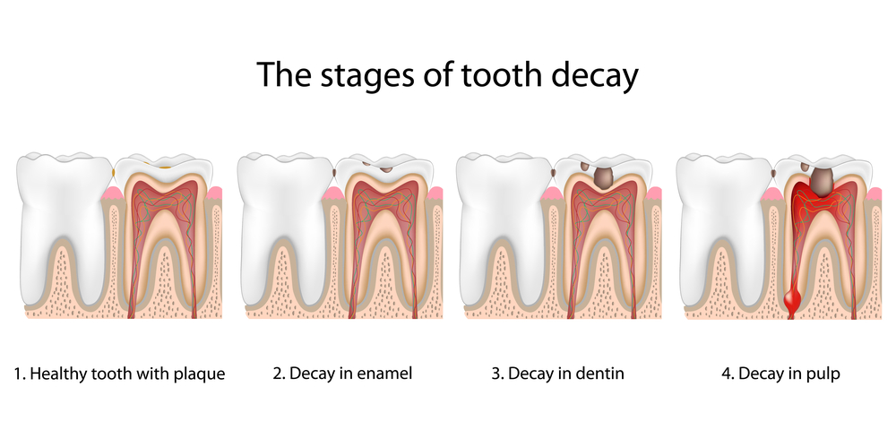 stages-of-tooth-decay-fremont-dentist - Red Apple Pediatric Dental Team